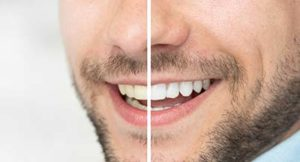 Side by side pictures of a man's teeth before and after teeth whitening services in Gulfgate, TX