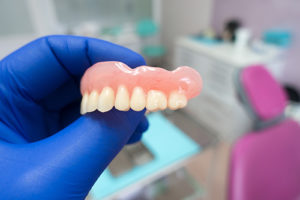 a dentist holds dental implants example as he explains snap-on overdentures in gulfgate tx